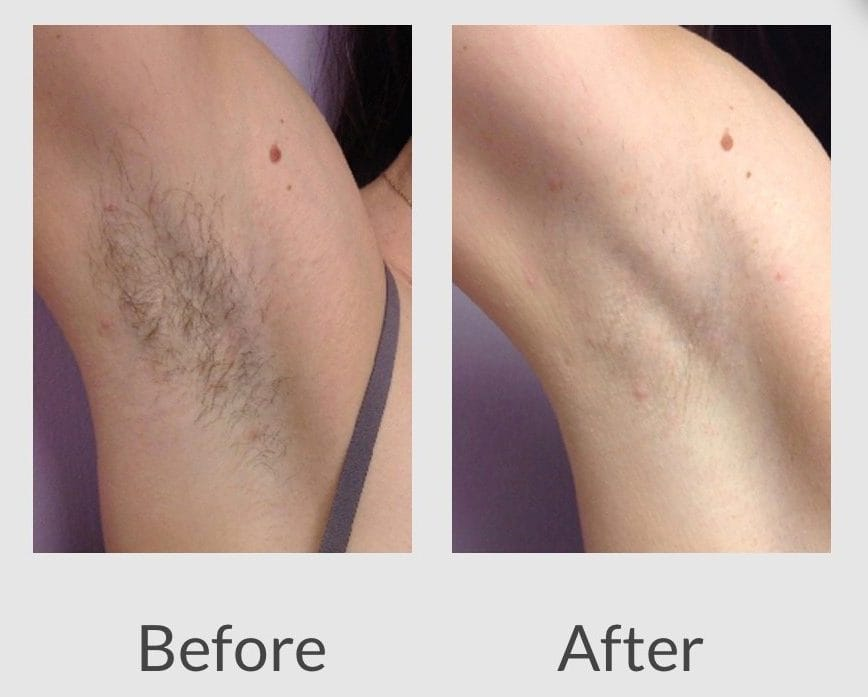 Laser Hair Removal The Derm Dermatologists In Cook County Il